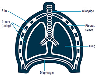 Diagram of a lung