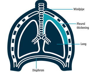A diagram showing plueral thickening in the lung